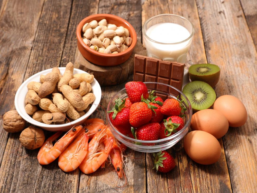 common food allergies: peanuts, milk, strawberries, eggs, prawns